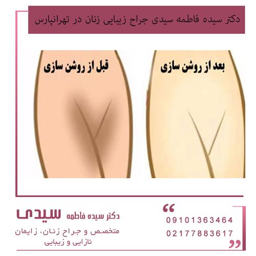 بهترین جراح زیبایی زنان در تهرانپارس