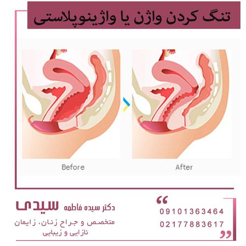 تنگ کردن واژن یا واژینوپلاستی