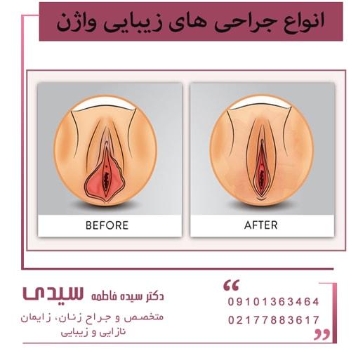 انواع جراحی های زیبایی واژن