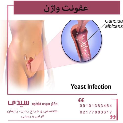 نشانه های به وجود آمدن عفونت های واژن
