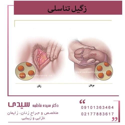 ویروس HPV (ویروس پاپیلومای انسانی) و بیماری زگیل تناسلی