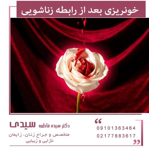 خونریزی بعد از رابطه زناشویی را جدی بگیرید!
